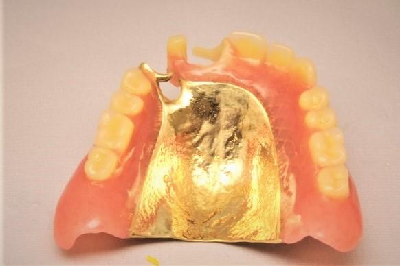 入れ歯やさし歯の地金